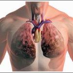 Туберкулёз лёгких – первые симптомы болезни