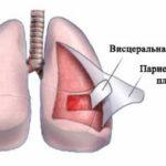 Плеврит лёгких — что это такое и как с ним бороться?
