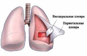 анатомия плеврита