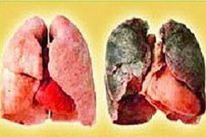 изображение больного лёгкого на разных стадиях хобл