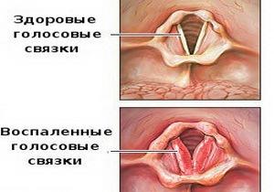 сравнительное изображение больных и здоровых голосовых связок