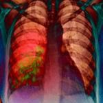 3Dизображение больного лёгкого