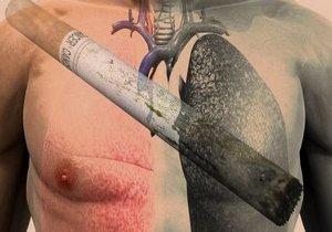 курение главная причина рака лёгкого