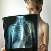мальчик рассматривает рентгеновский снимок