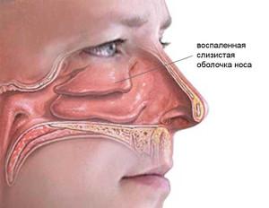 изображение слизистой оболочки носа при рините