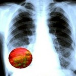 рентгеновский снимок лёгкого с очагом пневмонии
