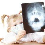 Определяем симптомы гайморита у детей и не допускаем развитие болезни