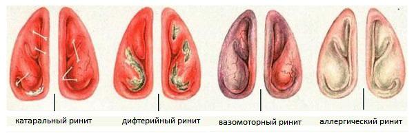 состояние слизистой оболочки носа в зависимости от вида ринита