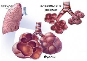 вид здоровой альвеолы и буллы