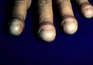 изменения в фалангах пальцев