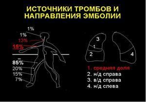 схема источников тромбов