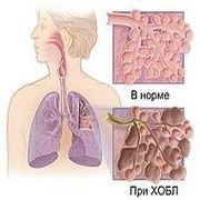 сравнительное изображение здорового и больного лёгкого