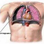 Насколько опасен закрытый пневмоторакс и как спасти больного?