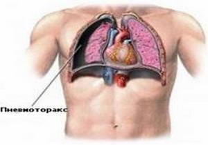 вид изменений в лёгком при прневмотороксе
