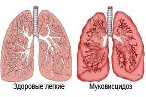 изображение здорового и больного лёгкого