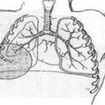 Симптомы клапанного пневмоторакса и методы его лечения