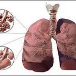 Что такое буллезная эмфизема легких, её причины, симптомы и лечение