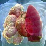 Что такое буллезная болезнь легких, ее симптомы и лечение