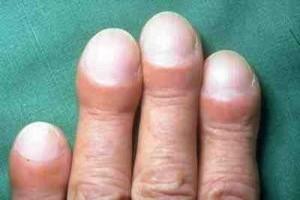утолщённые и опухшие пальцы