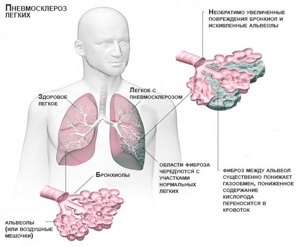 схема патогенеза пневмосклероза лёгких