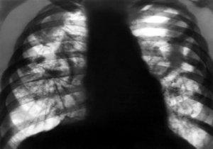 рентгенограмма патологии лёгочной ткани