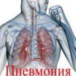 Признаки (симптомы) воспаления легких у взрослого и лечение болезни