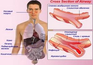 схема распространения муковисцидоза в организме