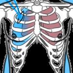Что такое открытый пневмоторакс и как оказать первую неотложную помощь?