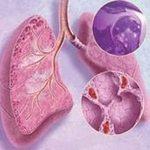 измения в лёгком при саркоидозе