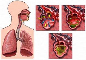 схематическое изображение развития пневмонии