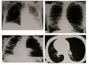 рентгенограмма и томограмма правостороннего и левостороннего прневматоракса