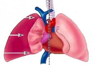 схема процесса сдавливания лёгкого