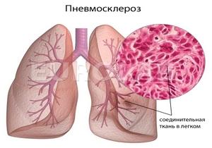 вид разросшейся соединительной ткани в лёгком