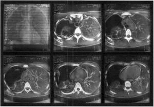 снимок методом компьютерной томографии
