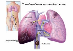 фоктор возникновения тромба в лёгочной артерии