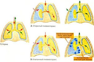 вид лёгкого с разными видами пневмотокса