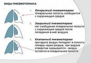 таблица с определением видов пневмоторакса