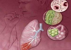 возбудители возникновения воспаления лёгкого