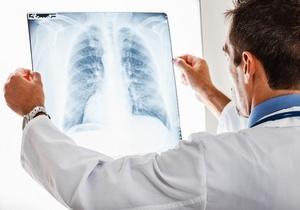 врач диагностирует заболевание по рентгенограмме