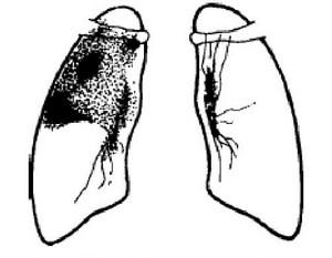 инфильтрат в верхней доле правого лёгкого