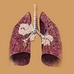 схематическое изображение изменений в лёгком