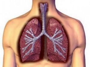 объёмное изображение лёгкого с инфильтратом в разрезе