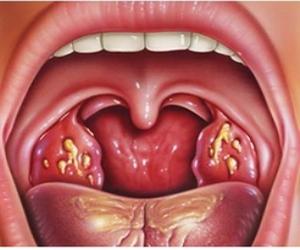 воспаление миндалин