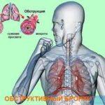 Что такое обструктивный бронхит, как определить его симптомы и вылечить