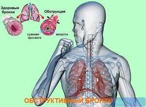 История болезни острый обструктивный бронхит 1 г