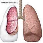 изменеия в лёгком при пневмотораксе