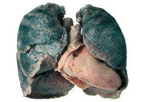 3D изображение лёгкого с выраженным поражением силикозом