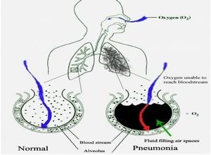 протекание основныех процессов при пневмонии