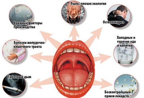 основные меры профилактикики тонзиллита