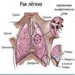 как рак поражает лёгочную ткань